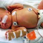 cool-cap: sauerstoffmangel bei risikogeburten verhindern
